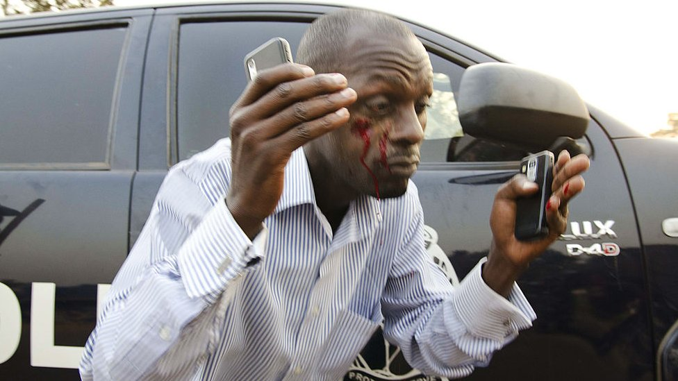A man bleeding after clashes between police and opposition supporters in Uganda