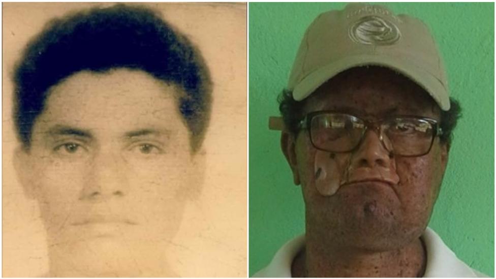 Deíde Freire de Andrade a los 18 años y ahora.