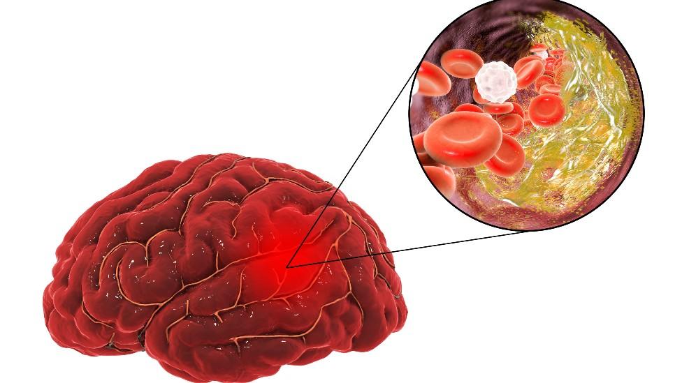 Ilustración de un cerebro que sufre un accidente vascular debido a aterosclerosis