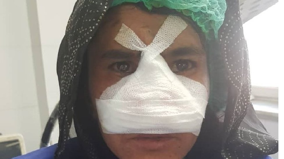 زاركا بعد العملية الجراحية