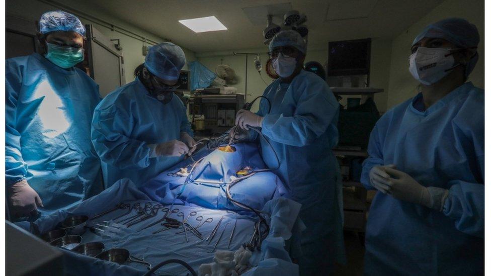 Médicos acompanham paciente com mucormicose