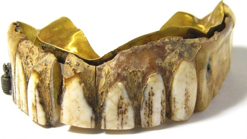 The hippo ivory and gold plated teeth