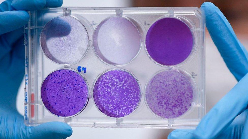 Investigador trabaja en una réplica del virus para desarrollar una vacuna.