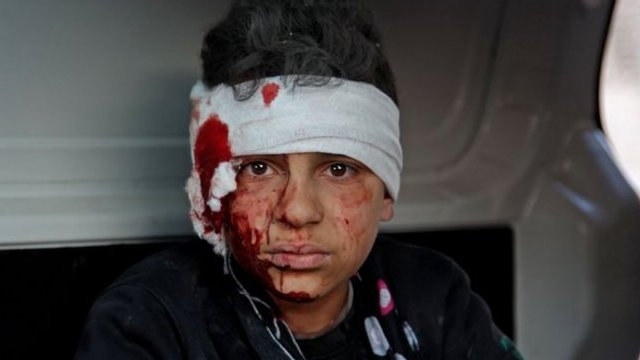 فتى سوري مصاب يجلس داخل سيارة بعد غارة جوية حكومية في معرة مصرين، شمال غرب سوريا، في 25 فبراير/شباط 2020
