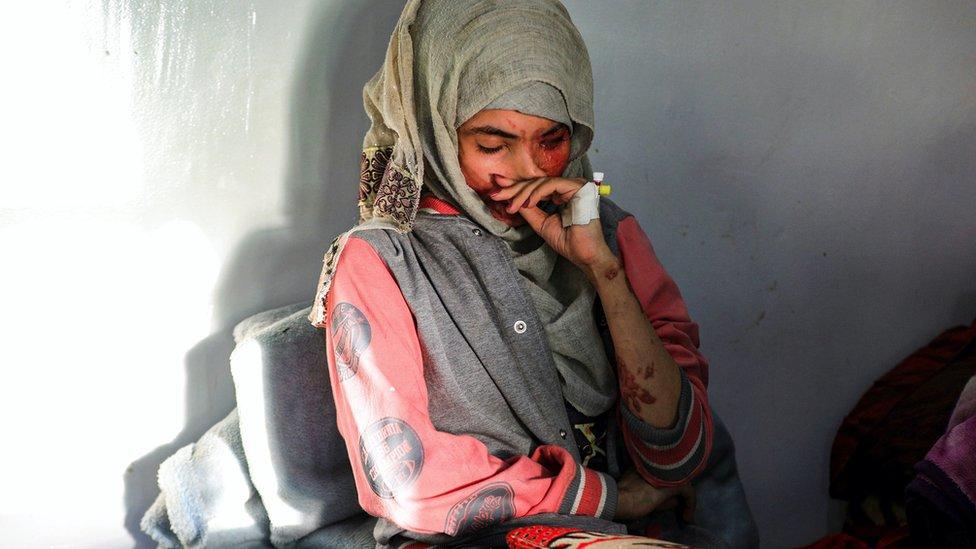 """هذه المرة، شغلت قصة الشابة اليمنية """"العنود"""" رواد مواقع التواصل الاجتماعي في اليمن وعدد من دول العربية لأيام متواصلة."""