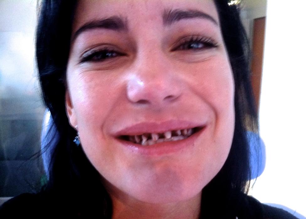 Natalia's teeth shaved down