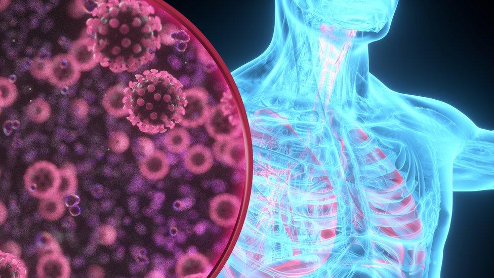 Ilustração gráfica mostra placa com desenhos do coronavírus, e corpo de homem atrás, com pulmões e costelas aparentes