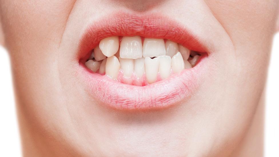 Hombre con dientes torcidos.
