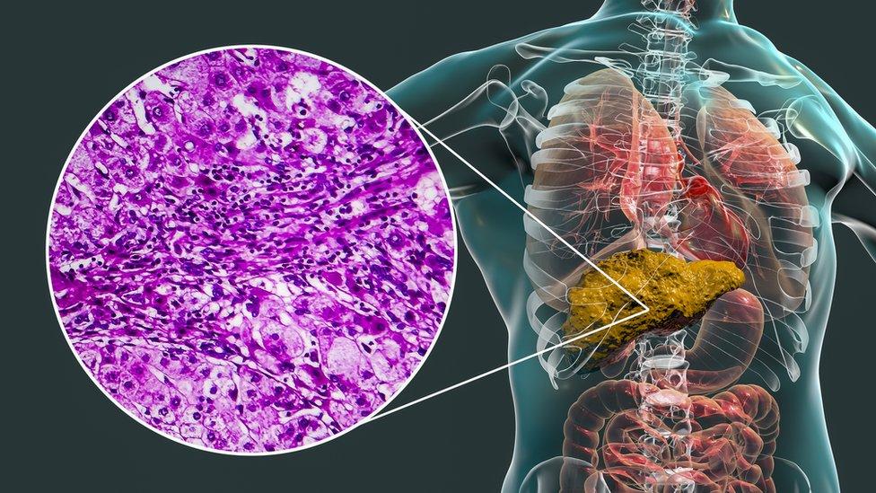 Gráfico de un hígado cirrótico