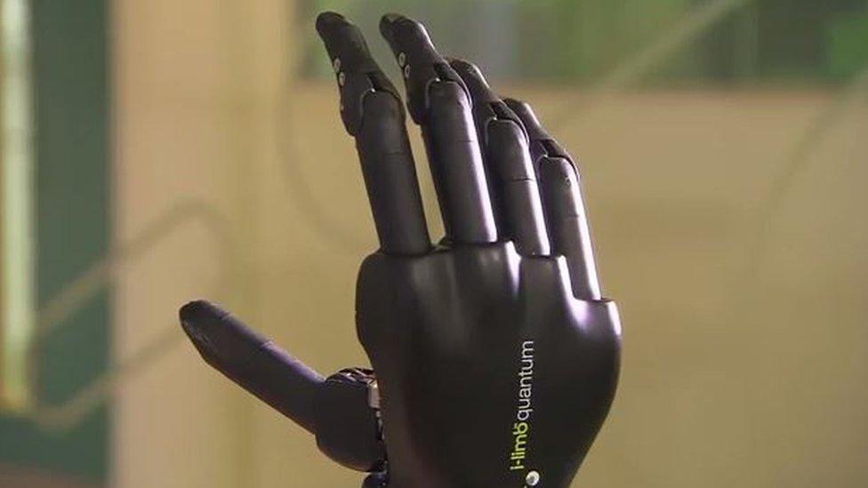 The i-limb quantum hand