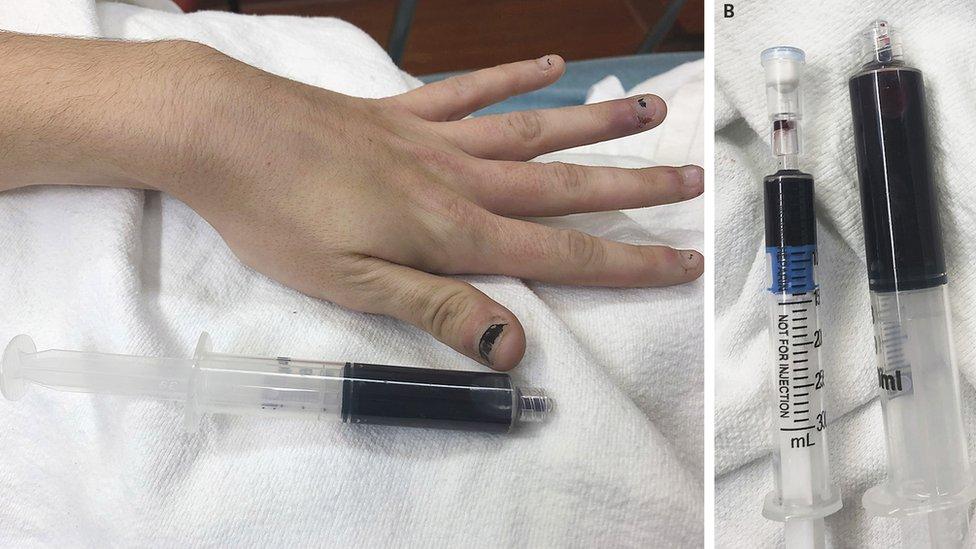 Imagen de las uñas y una extracción de sangre de la paciente.