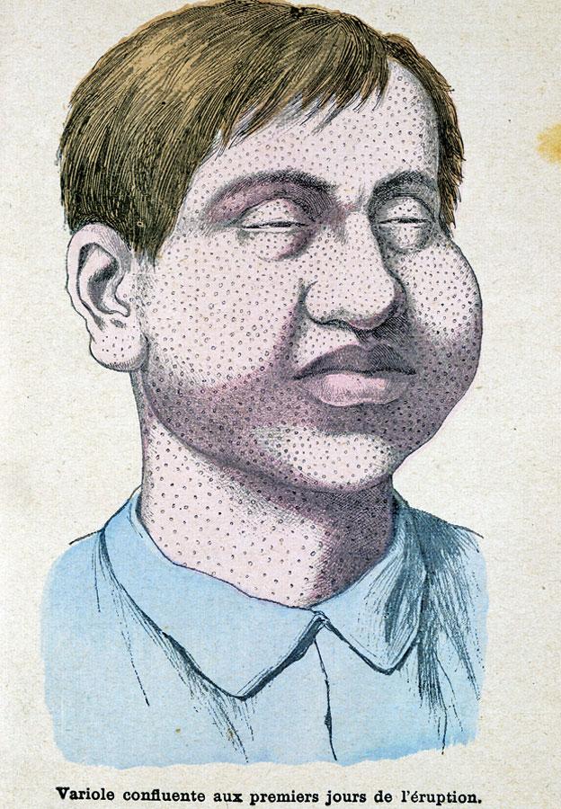 "Dibujo mostrando los primeros días de la erupción de viruela en ""Les Grands Maux et les Grands Remèdes"" Librairie Illustrée - Montgredien & Cie 1889."