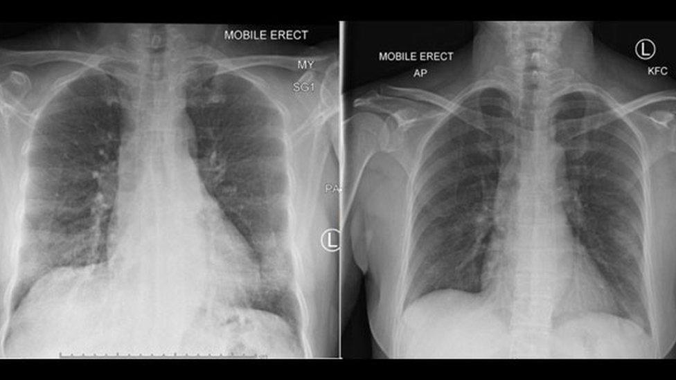 Snimak grudnog koša pacijentkinje pokazuje da su se pluća iščistila nakon pojave ćelija imuniteta