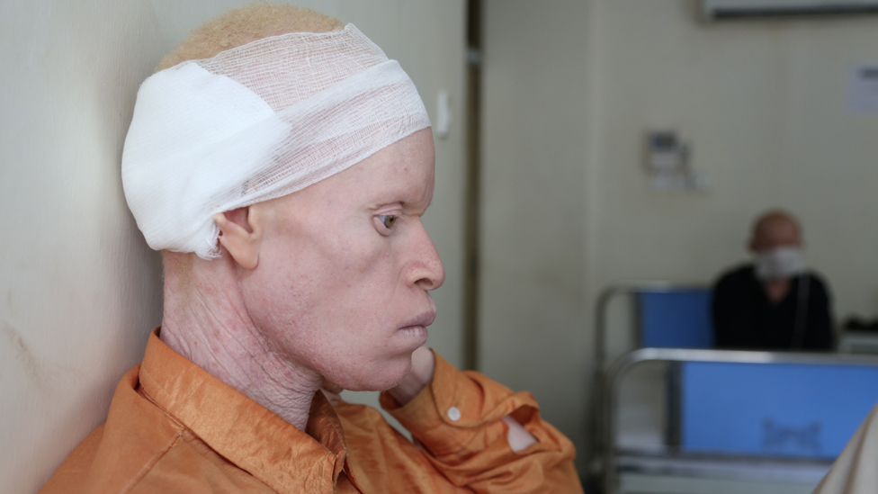 A cancer patient with albinism at the Ocean Road Cancer Ward in Dar es Salaam