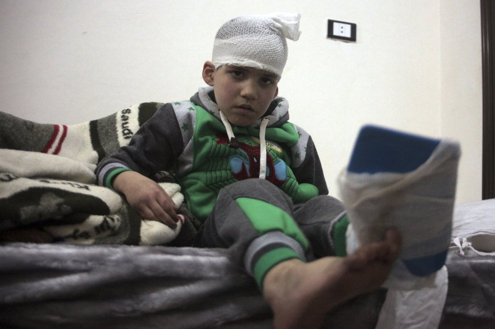 An injured boy from east Aleppo sits in a hospital bed near Idlib, 16 December