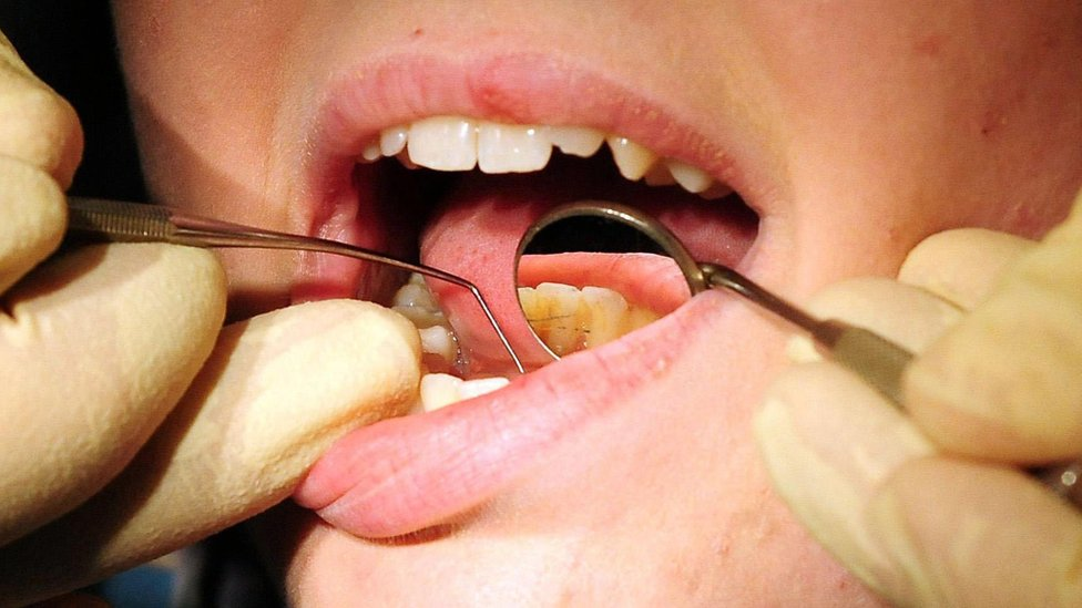 Dentist looking into a patient's mouth