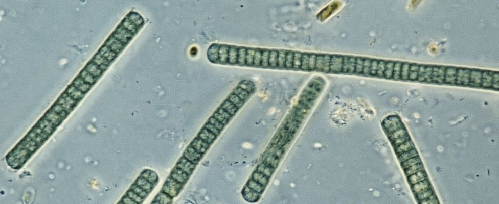Oscillatoria, genus cyanobacterium, blue-green algae, seen under a microscope.