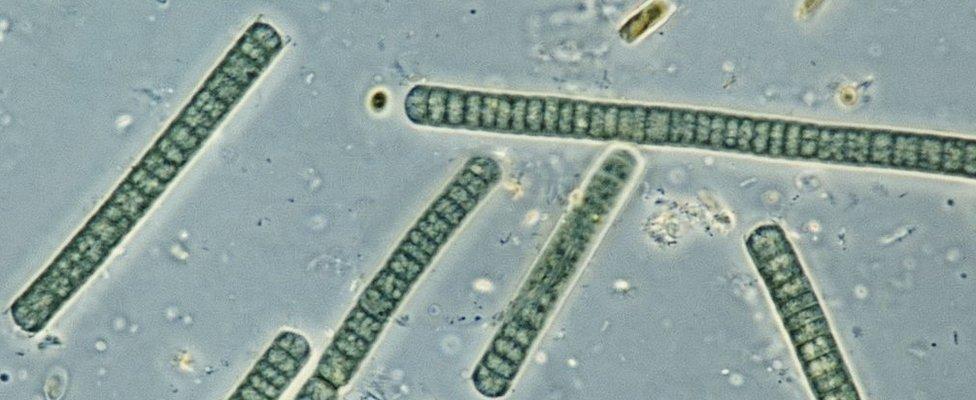 Oscillatoria, cyanobacterium ya jenasi, mwani wa bluu-kijani, inayoonekana chini ya darubini.