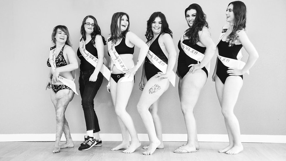 Caerphilly burns survivor enters beauty pageant
