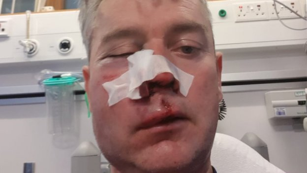 Referee's jaw broken in 'appalling' attack after amateur game