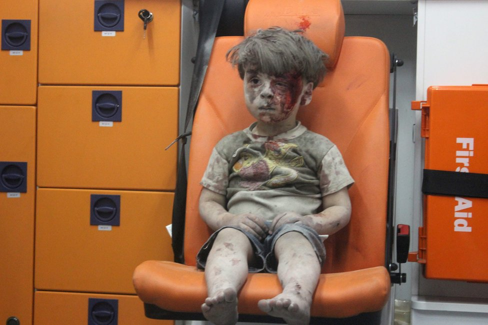 Omran Daqneesh, a four-year-old Syrian boy covered in dust and blood, sits in an ambulance after being rescued from the rubble of a building hit by an air strike in the rebel-held Qaterji neighbourhood of the northern Syrian city of Aleppo on 17 August 2016
