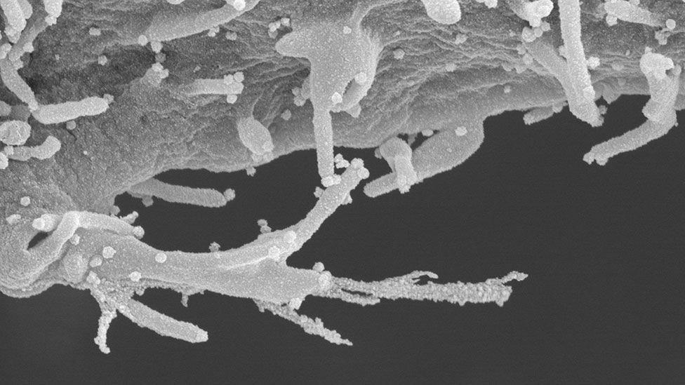 Imagem microscópica em preto e branco mostra filamentos e bolinhas de vírus