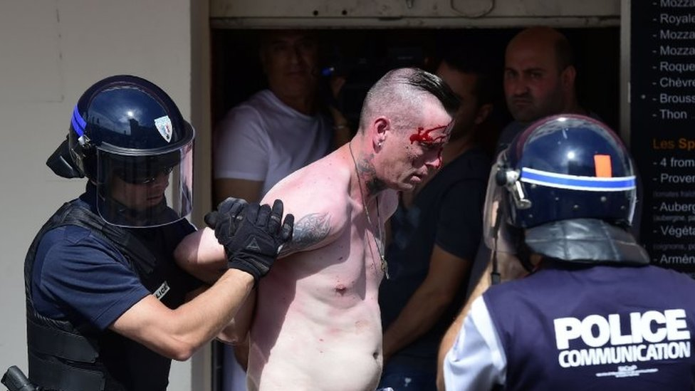A bloodied fan being led away by police