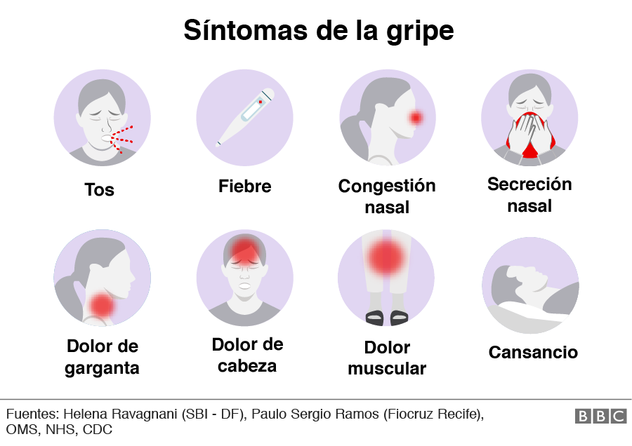 Síntomas gripe