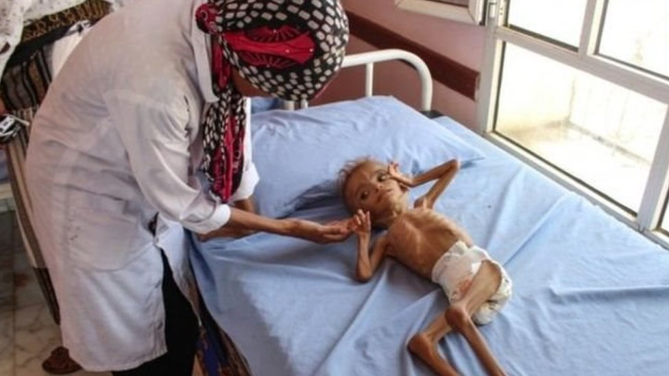 طفل يمني يعاني من سوء التغذية