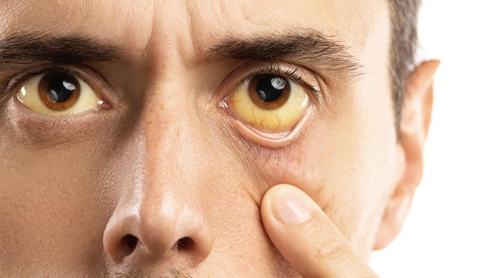 Un hombre con los ojos amarillos
