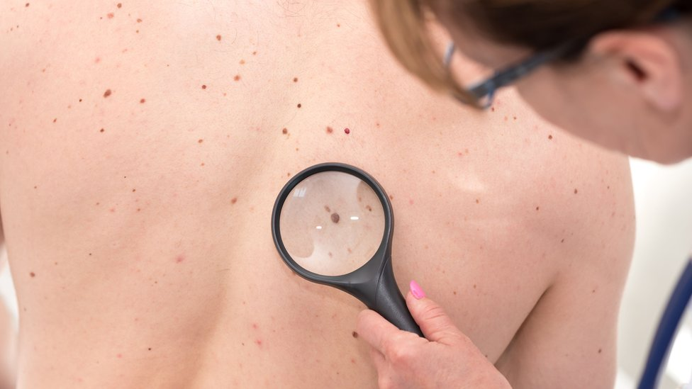 Targeted treatment for melanoma to be free on NHS