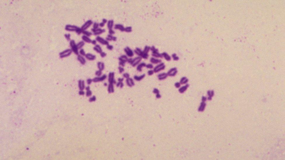 Cromosomas de un paciente con síndrome de Turner.