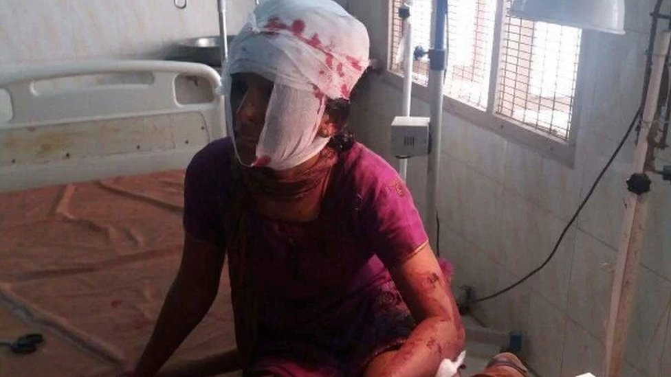 The injured woman in hospital