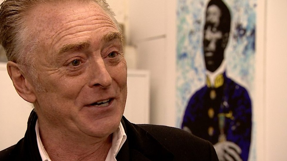 BBC News - UB40 saxophonist Brian Travers undergoes brain surgery