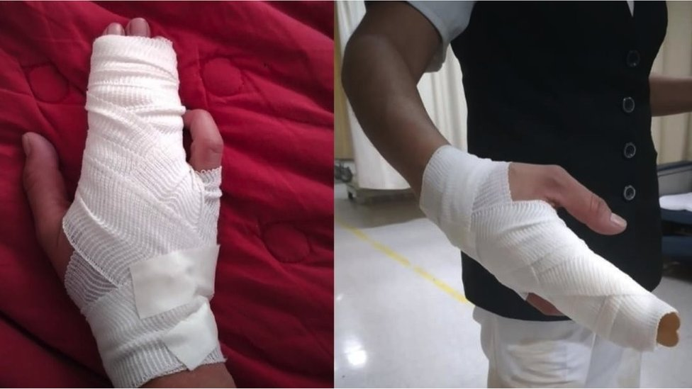 Imágenes de la mano fracturada por una enfermera agredida