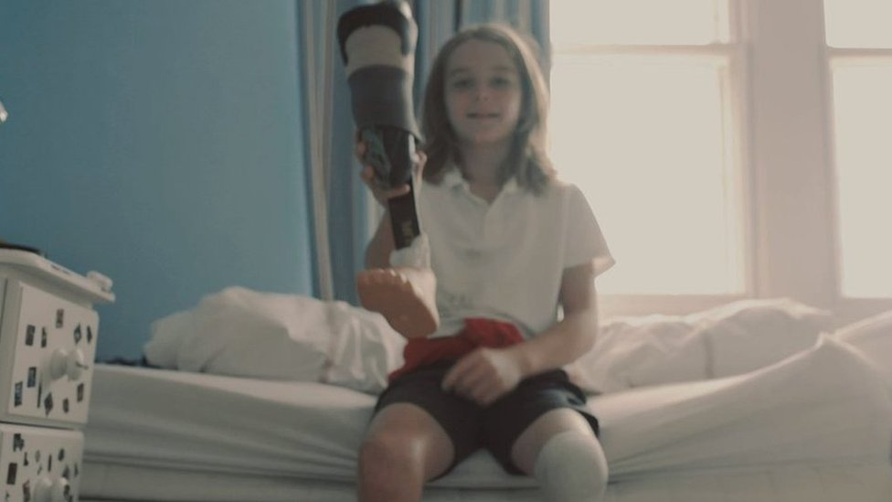 Bath boy campaigns to recycle prosthetic legs