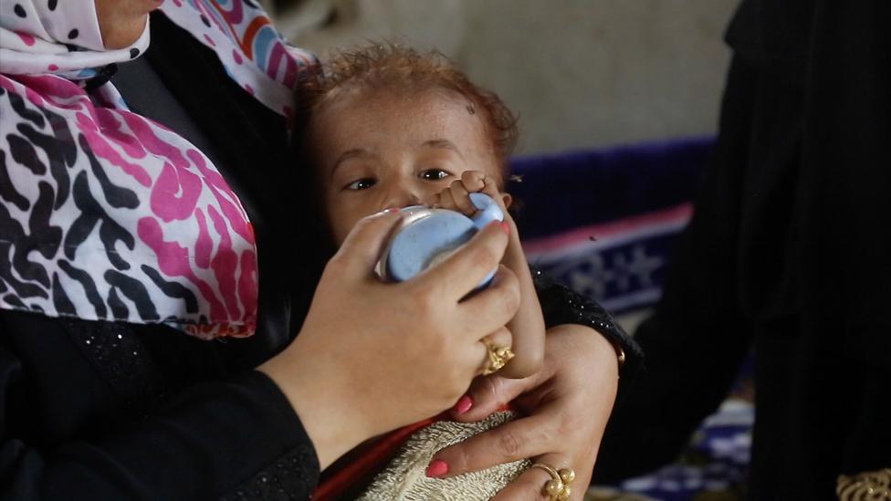 Abdulrahman receives bottle-milk