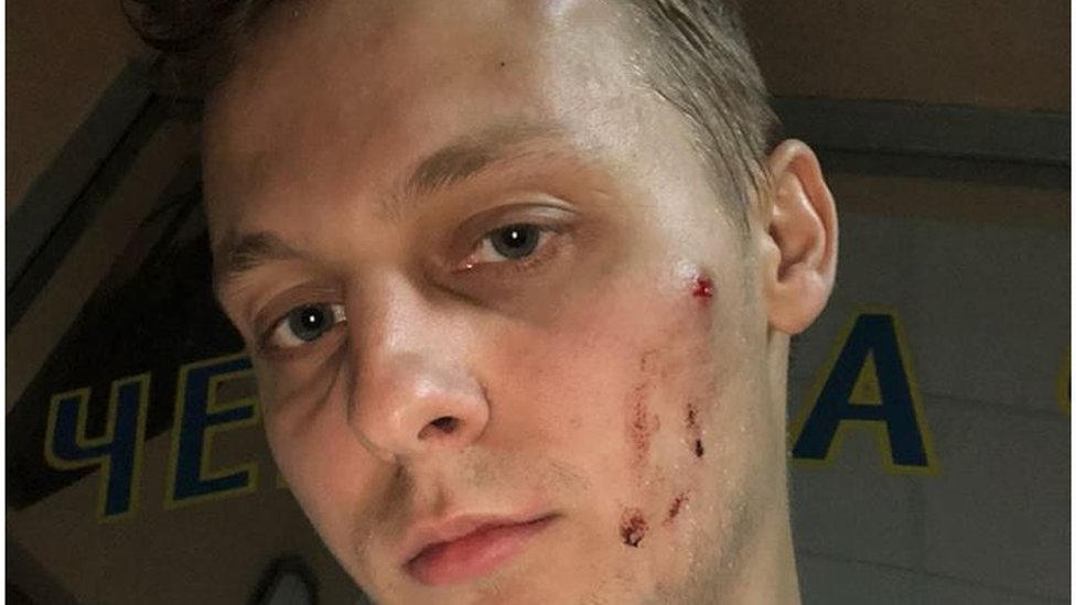 У Києві побили сина депутата Шуфрича