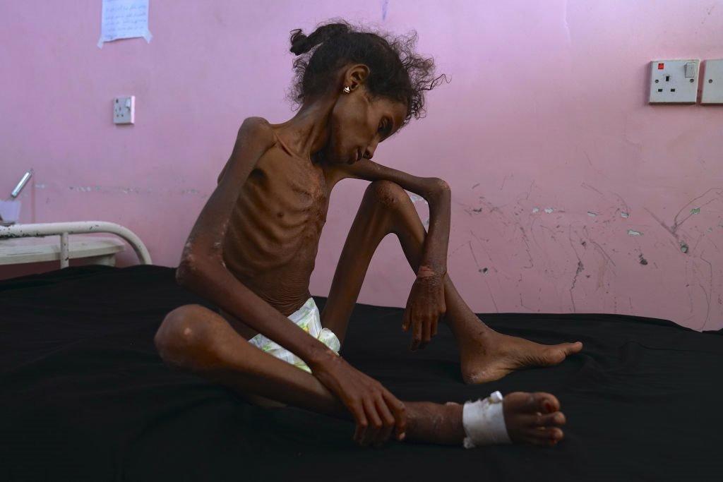 طفلة يمنية تحتضر بسبب الجوع