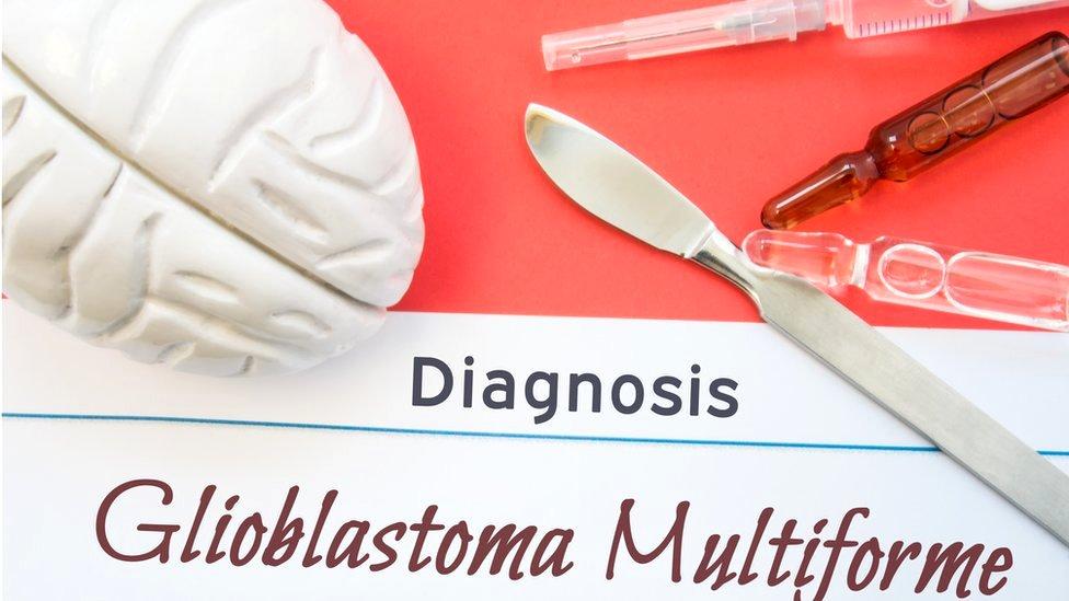 Ilustración sobre glioblastoma.