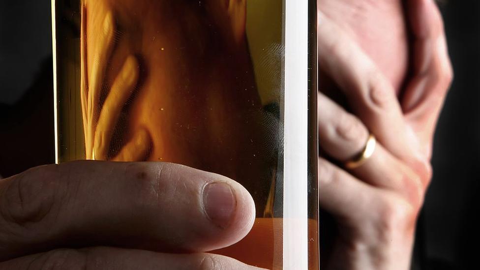 Lekari kažu da je konzumacija alkohola štetna za imuni sistem