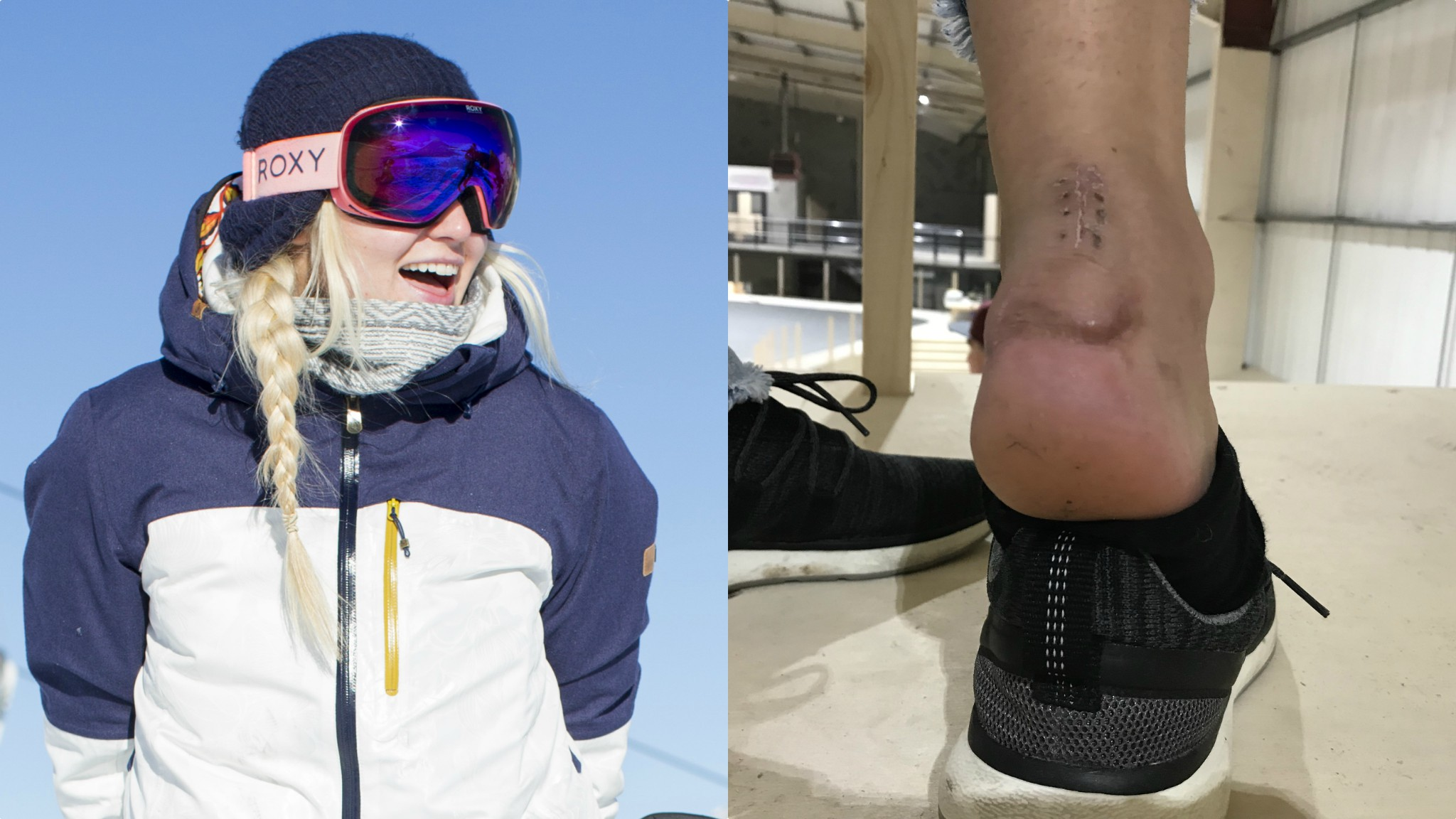 Katie Ormerod: Olympic snowboarder on how a broken heel led to 'dark days'