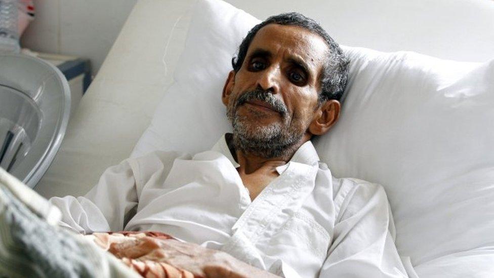 Yemen faces world's worst cholera outbreak - UN