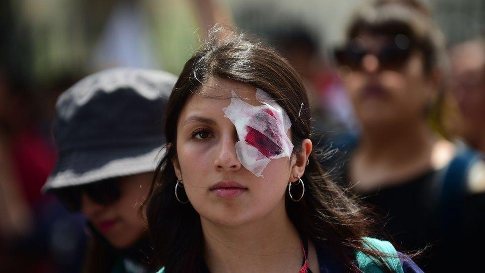 Manifestante chilena con una venda en el ojo