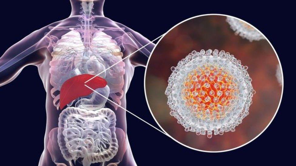 ilustracija Hepatitisa C