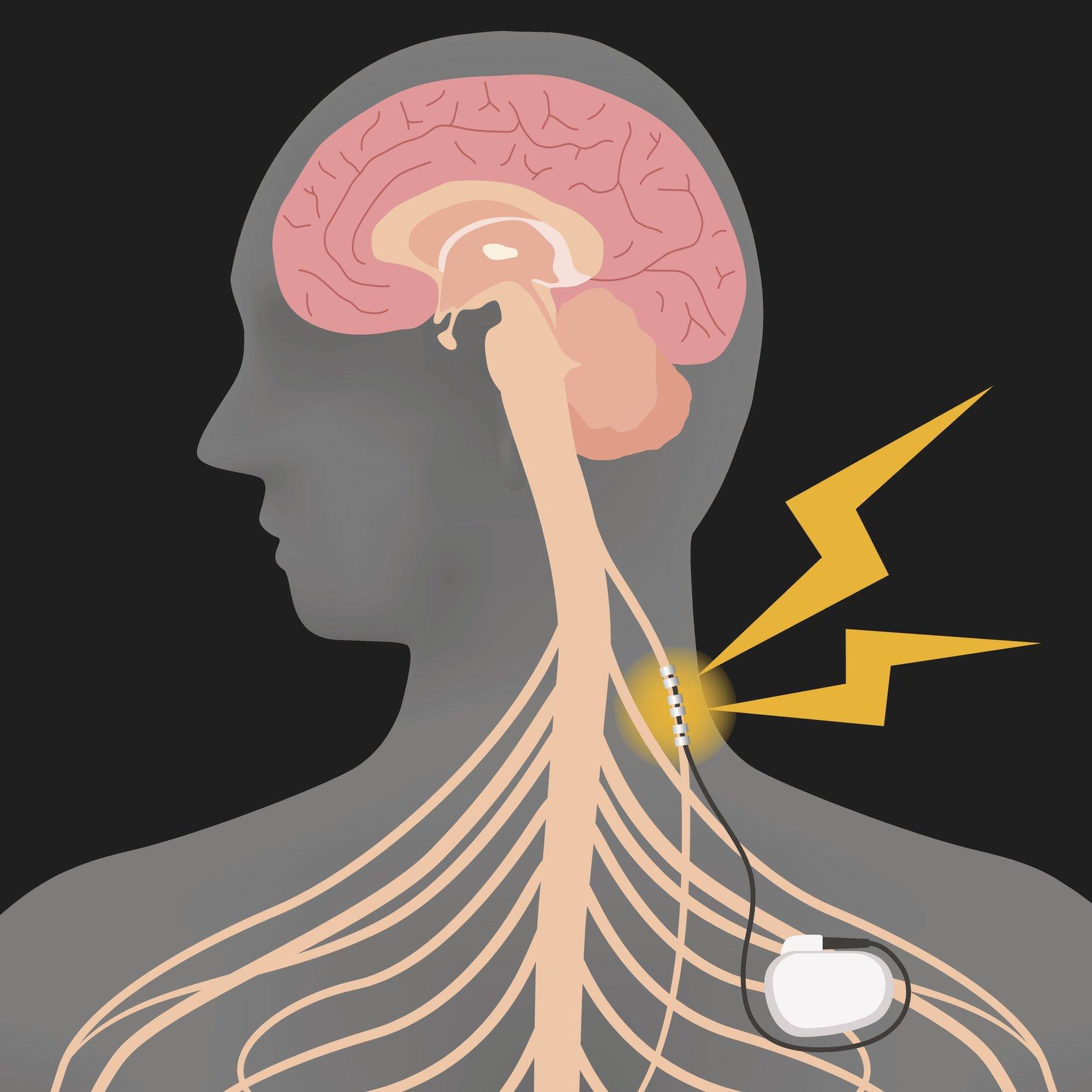 Ilustración de la estimulación del nervio vago.