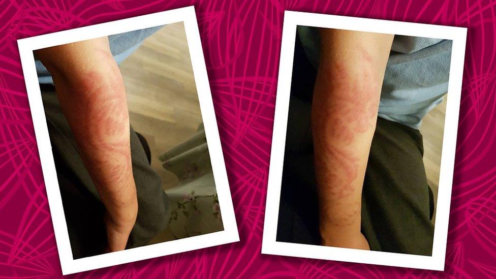 Cicatriz del tatuaje de dragón que le hicieron a Alex con henna negra.