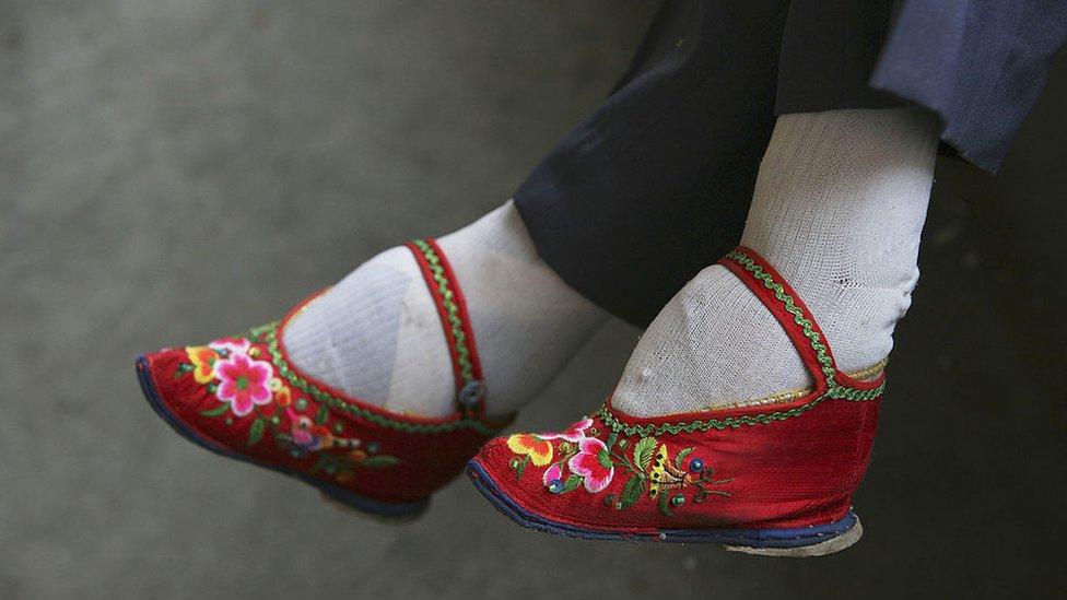 Pies vendados de una mujer china.