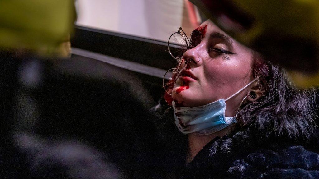 Una chica es atendida tras sufrir una herida grave en el ojo.
