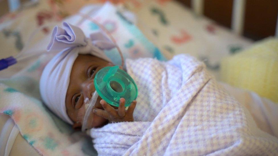 prerano rođena beba